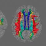 Найдена связь между депрессией и белым веществом мозга