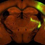 Биологи нашли нейроны, поддерживающие сознание